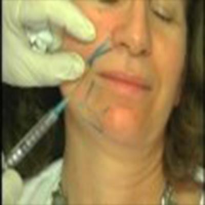 消除眼部、鼻部、嘴部皱纹