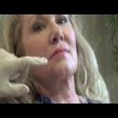 玻尿酸填充脸部各细纹