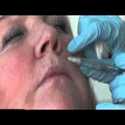 玻尿酸填充治疗鼻唇沟