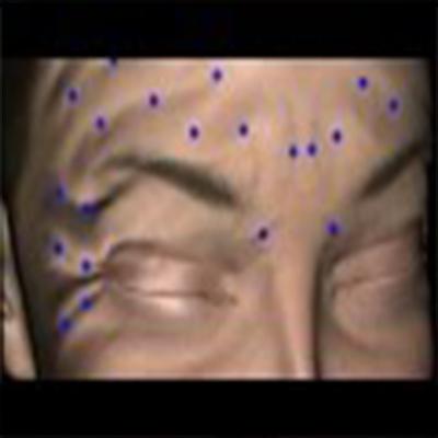 3D演示消除面部皱纹