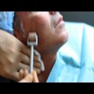 微针滚轮治疗皮肤粗糙