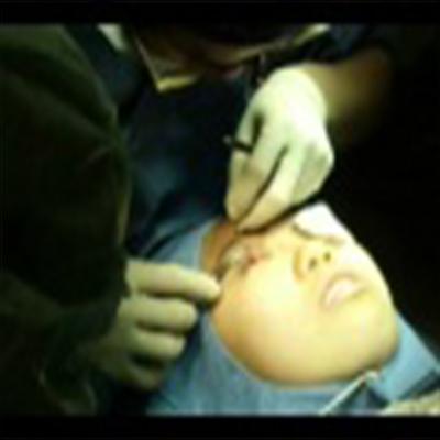外科整容手术:重睑手术