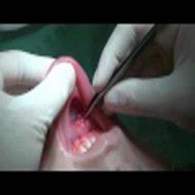 外科整容手术:下颚部填充