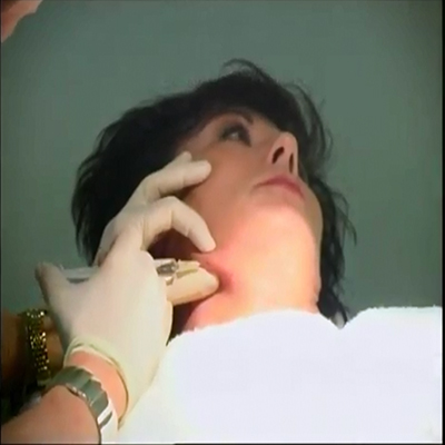 溶脂针消除脖子赘肉