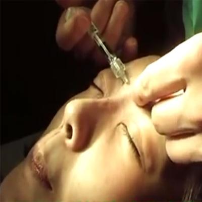 玻尿酸注射多方位护理