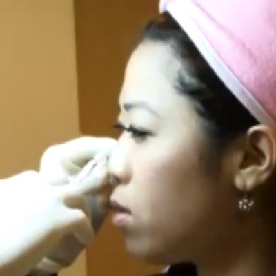 玻尿酸注射填充隆鼻