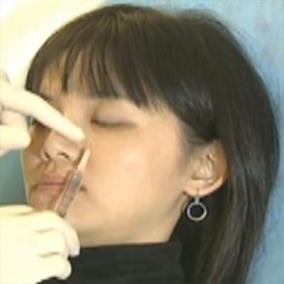 胶原蛋白注射唇部微整形