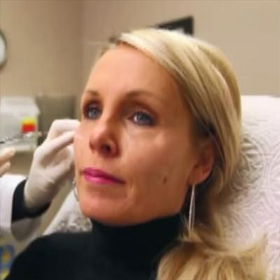 玻尿酸填充提升面部