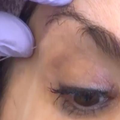 上眼睑与眉毛的填充