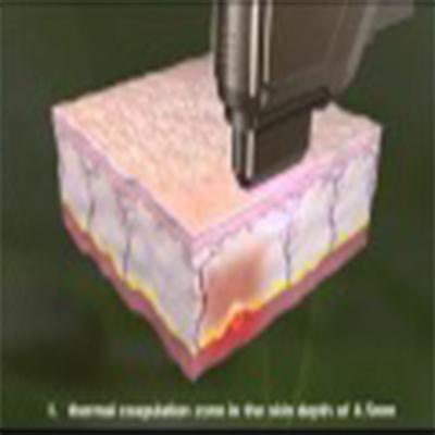 3D演示超声刀拉皮