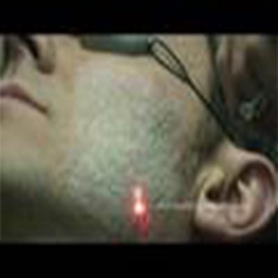 激光消除皮肤凹坑