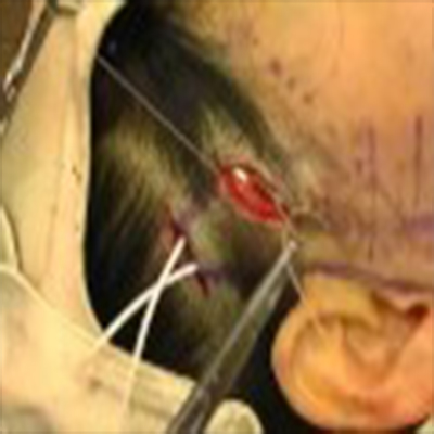外科拉皮手术提升