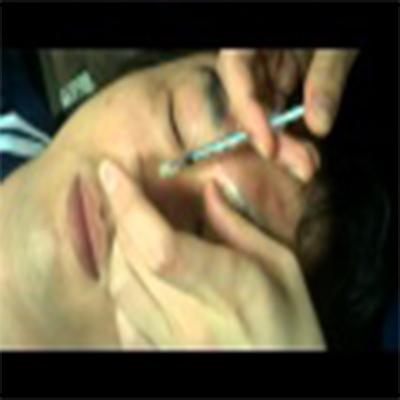 肉毒杆菌消除眉间纹