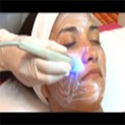 射频嫩肤治疗