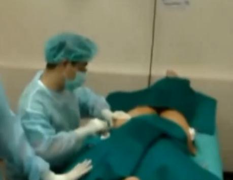 脂肪移植腿部抽脂