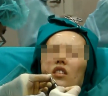 自体脂肪移植脸部填充